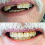 harpers-ferry-dentist-patient-results-9